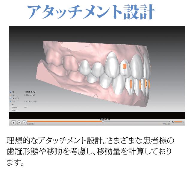 理想的なアタッチメント設計。さまざまな患者様の歯冠形態や移動を考慮し、移動量を計算しております。