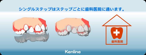 シングルステップはステップごとに歯科医院に通います。