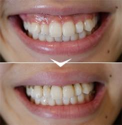 歯茎の見えすぎを<br />改善したい