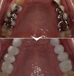 奥歯の銀歯を<br />白い歯にしたい