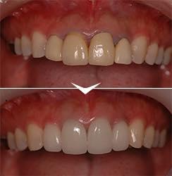 詰め物による<br />歯茎の変色を治したい