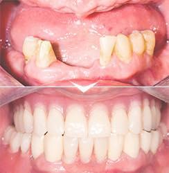 失った歯を作りたい