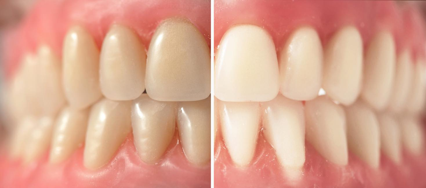 ホワイトニング オフィスホワイトニング 歯が黄色い 南青山矯正歯科クリニック 2016/5/24