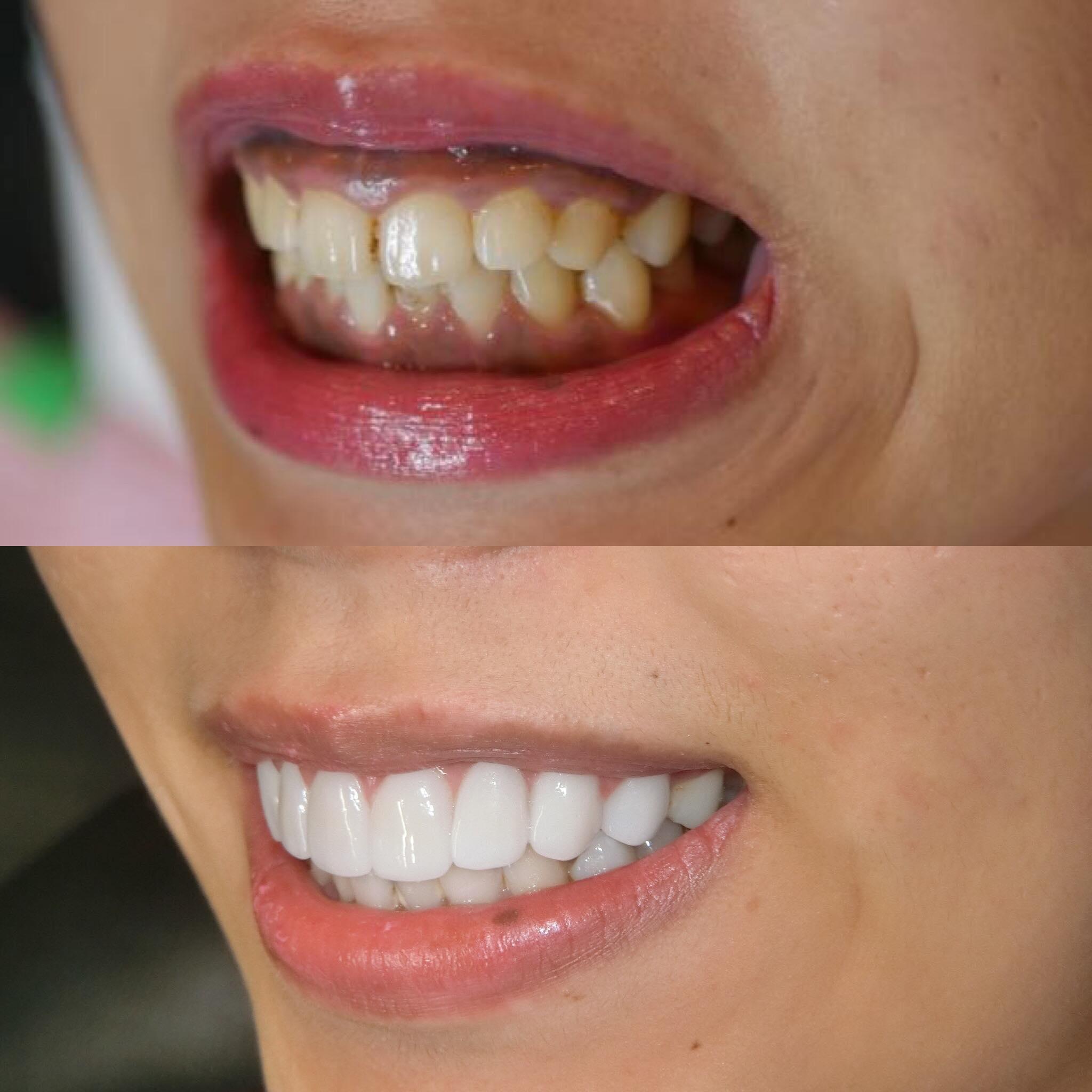 ご要望にお応えして!8本ジルコニアセラミック矯正!80万円。にこっと笑うとみえてしまう横顔まで綺麗に。好きな色と形を選べるのは8本の最大のメリット。歯並び、歯の色、歯の形、自由自在。
