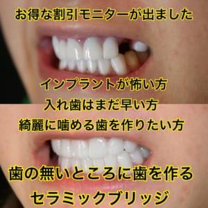 歯を抜歯した方、歯のセラミックブリッジがお得に受けられるモニター インプラントが怖い方 入れ歯はまだ早い方 綺麗に噛める歯を作りたい方におススメ