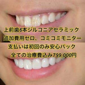 セラミック矯正、最高級ジルコニア上前歯6本、追加費用ゼロ。支払いは初回のみのコミコミ安心パック。すべての治療費込みで799,000円。女性らしいデザイン。最短3週間からの短期矯正。歯並び、歯の色、歯の形、出っ歯、受け口、すきっ歯、ガミースマイル、テトラサイクリンが気になる方に。
