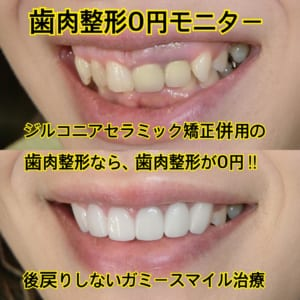 ガミースマイル治療の歯肉整形が無料でおまけ!後戻りしないジルコニアセラミック矯正併用モニター