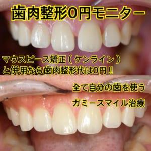 歯並びもガミースマイルも両方治したい!でも自分の歯がいい!そんな方には歯肉整形が無料のマウスピース矯正併用モニター