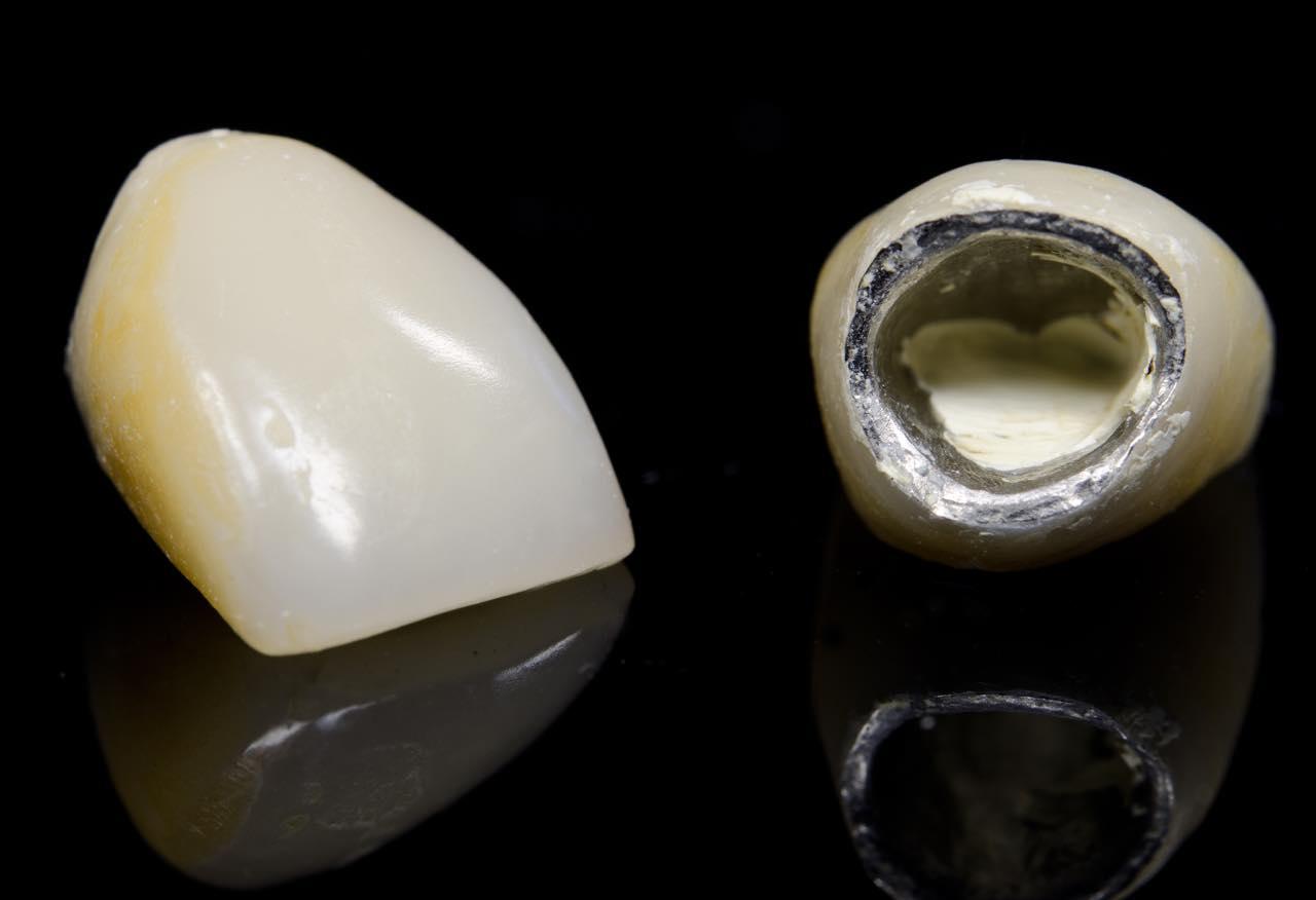 歯茎が黒い原因とオールセラミックによる対処法