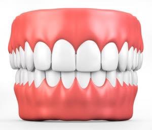 差し歯と歯茎の境目と歯茎の黒ずみの原因
