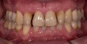 歯が黄ばんでいる