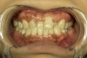 出っ歯とはどんなもの?