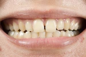 すきっ歯とはどんなもの?