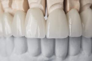 前歯のオールセラミック矯正の仕上がりを左右するのは他の歯とのバランス