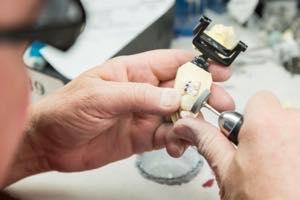 セラミック歯を製作する