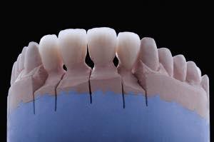 仮歯を取り、セラミック歯を装着する