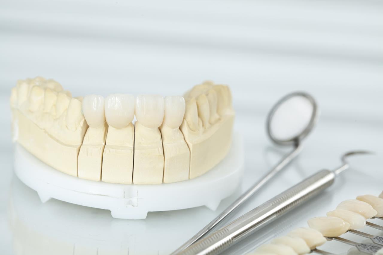 オールセラミックの差し歯や詰め物が取れた時の対処法