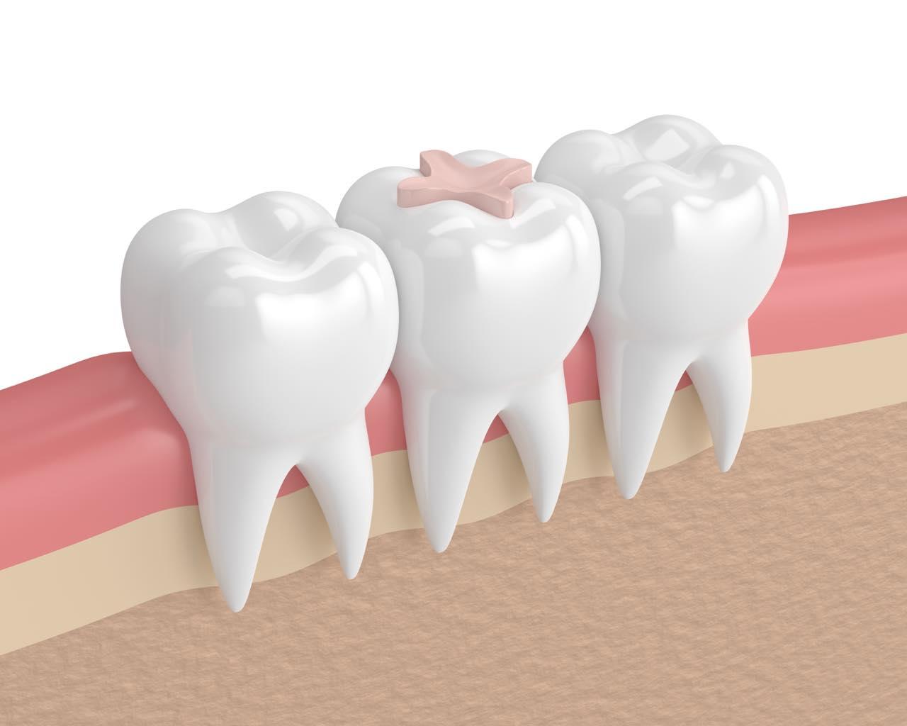 オールセラミックは奥歯の詰め物や被せ物に適応するの?