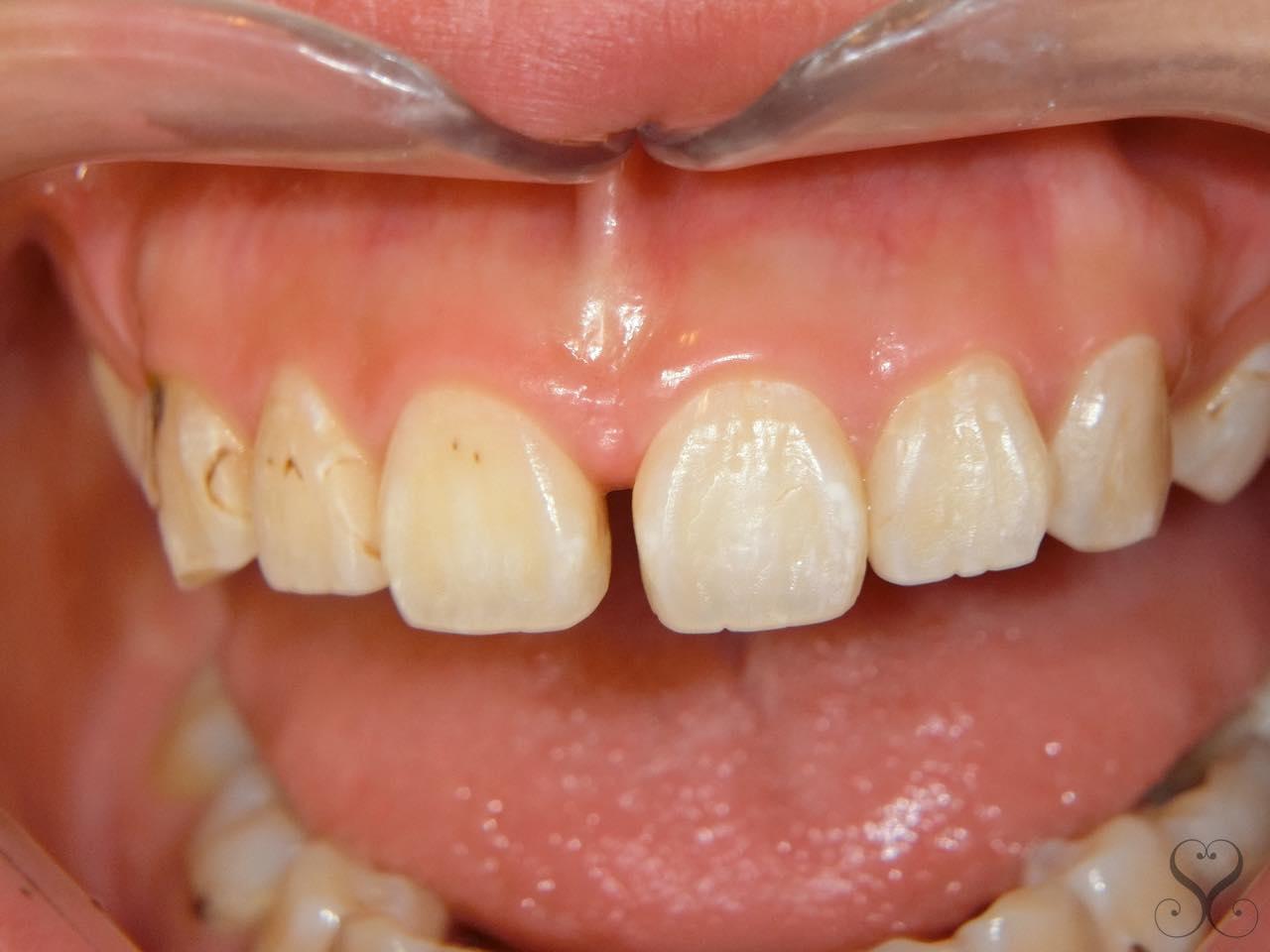 前歯の出っ歯・すきっ歯をオールセラミックで矯正する値段は?