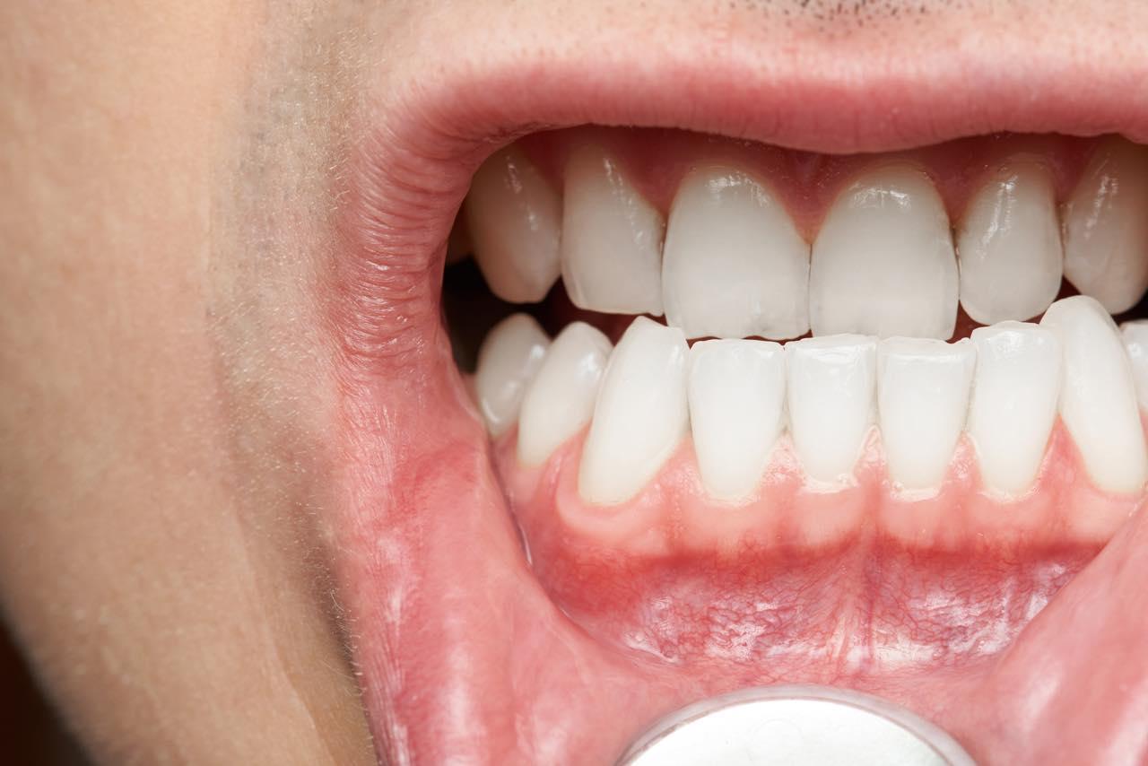受け口の治療でオールセラミックは適応するの?
