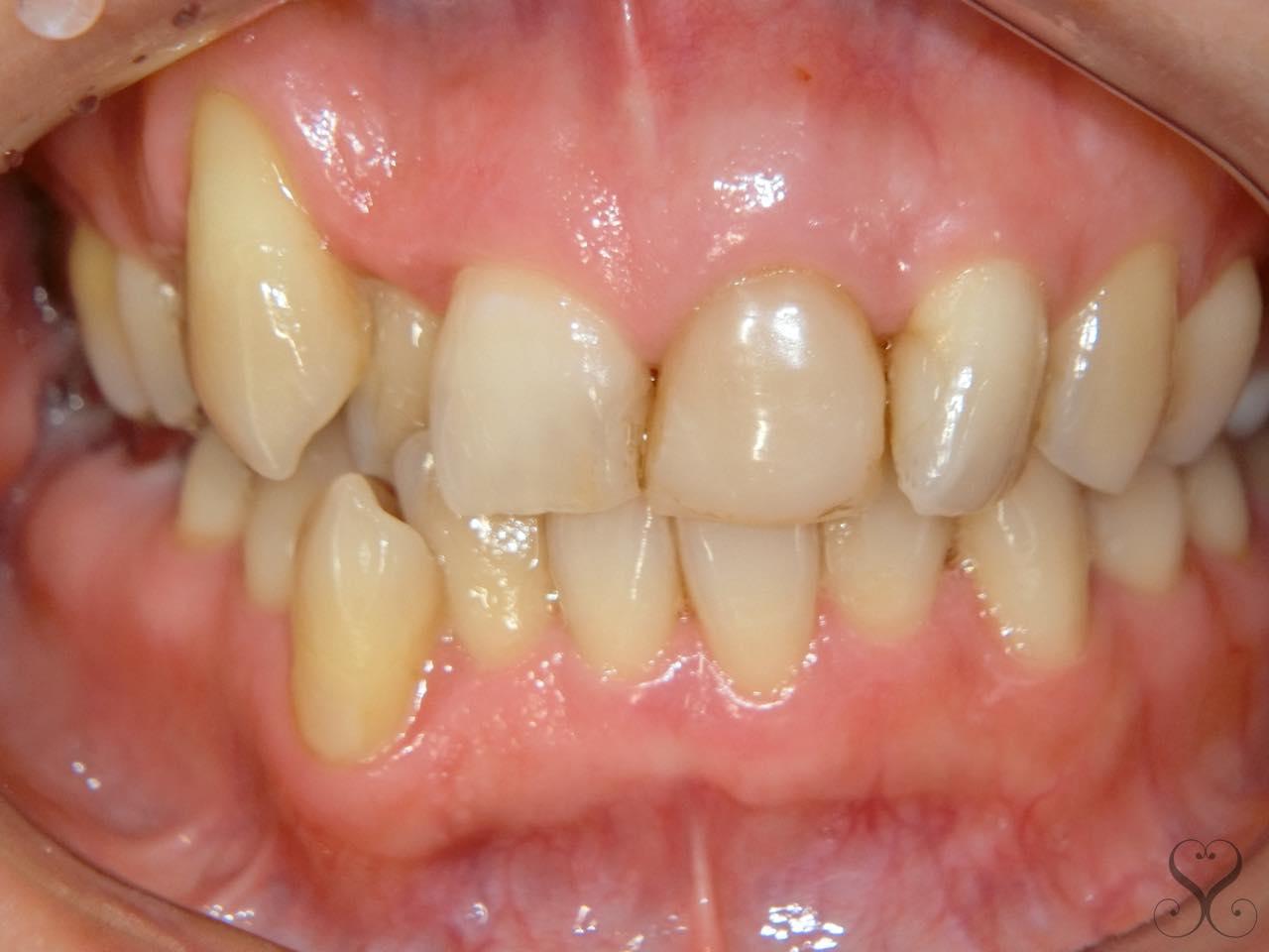 オールセラミックで八重歯の矯正はできるの?