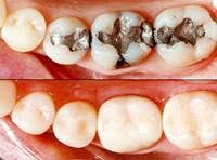 銀歯の詰め物を安く綺麗な白い歯に