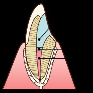 ウォーキングブリーチ | 南青山矯正歯科・審美歯科