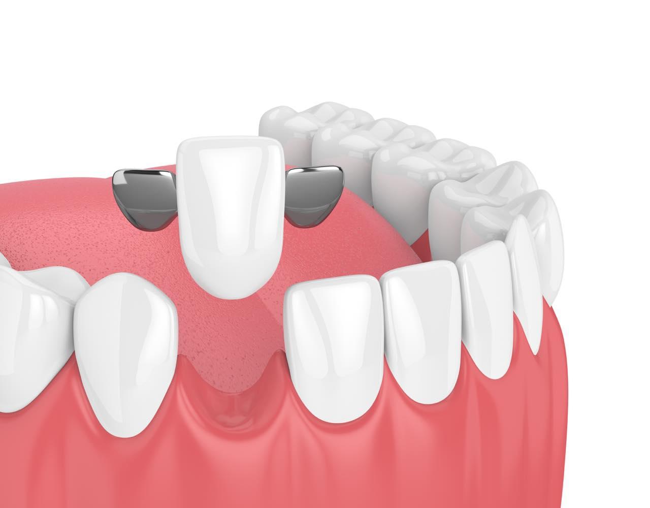 歯を削らない接着性ブリッジとは