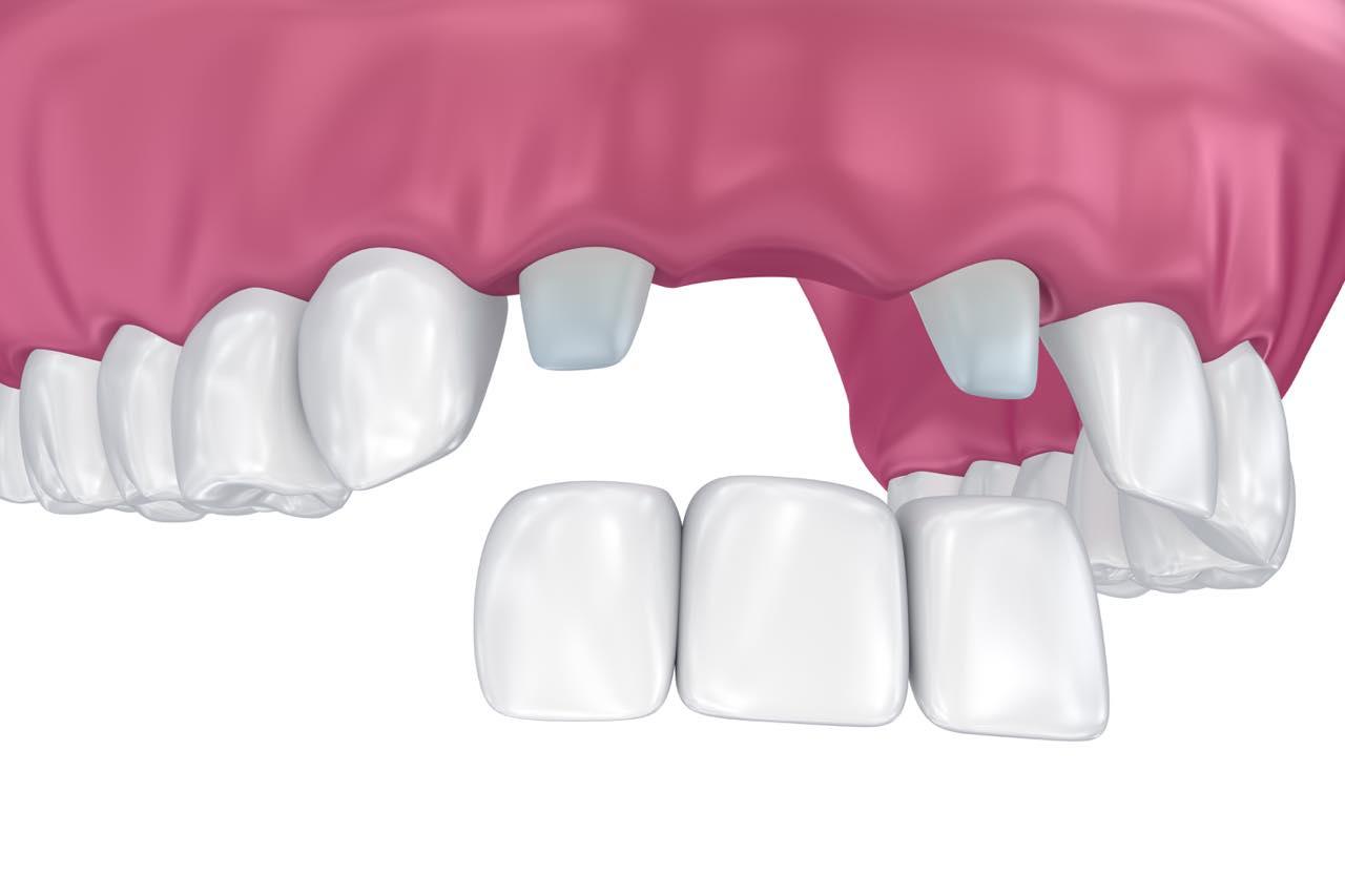 前歯のブリッジ治療とセラミック治療の違いは?