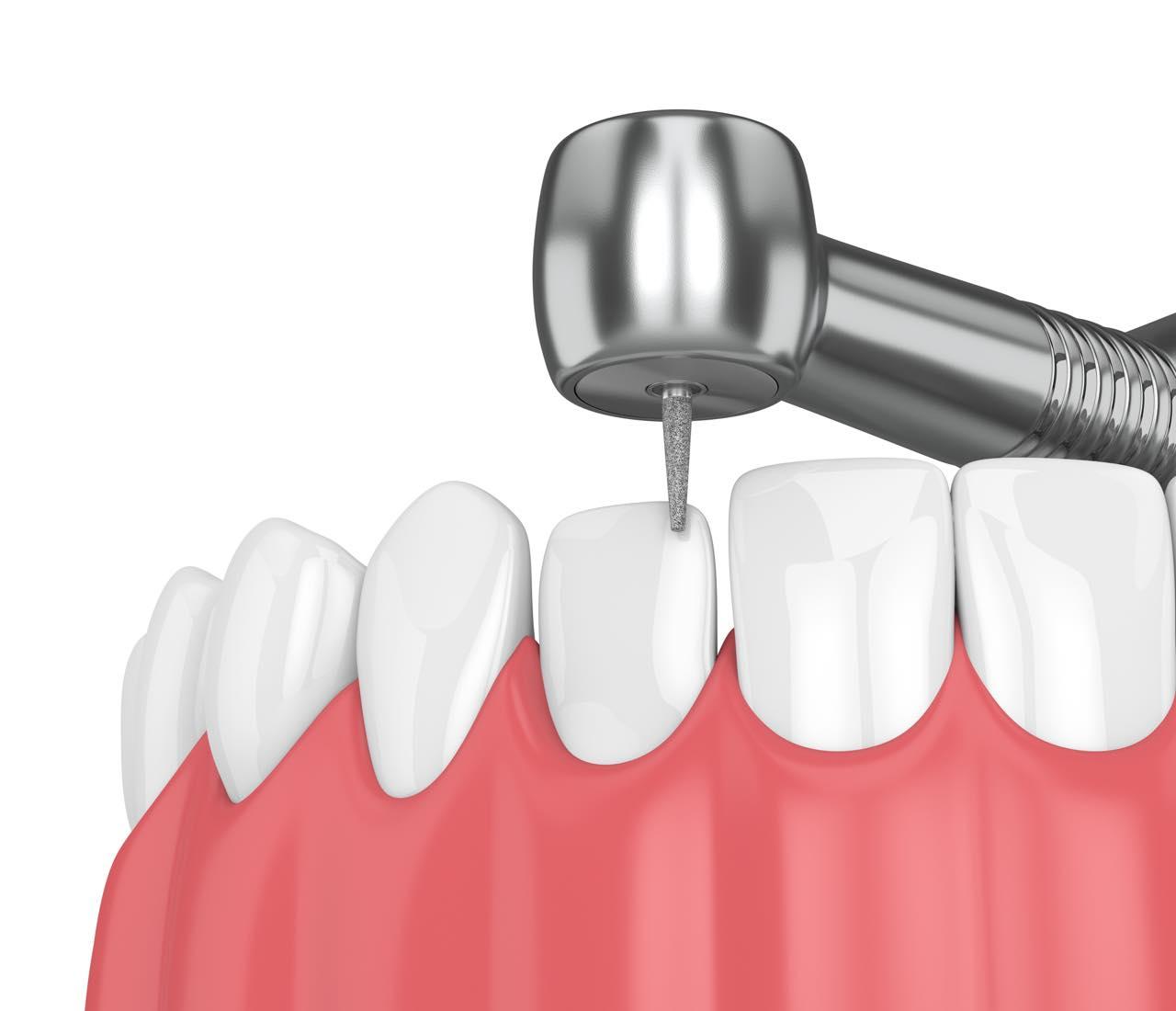 虫歯でもセラミック矯正はできる?治療後の虫歯のリスクも教えて