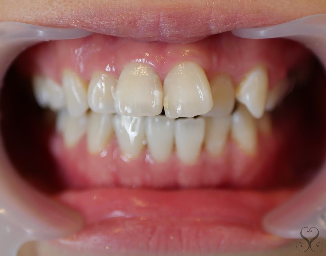 出っ歯をセラミック矯正で治すメリット・デメリット