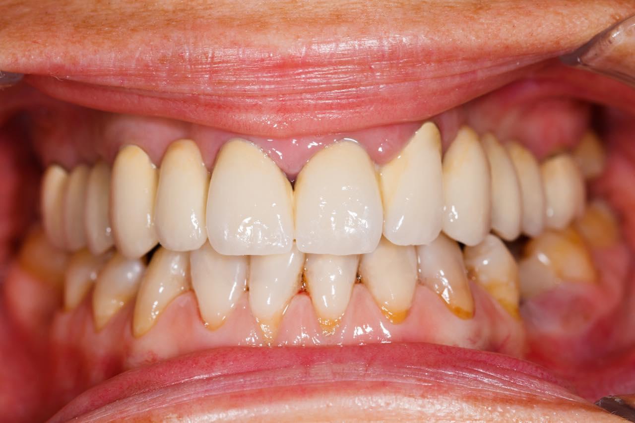 歯茎が黒くならない差し歯を紹介!セラミックをおすすめする理由とは?