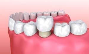 仮歯を取り、セラミック歯を装着