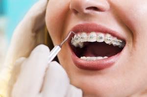 ワイヤー矯正やマウスピース矯正は虫歯があるとすぐに矯正ができない