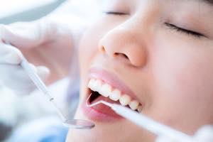 セラミック矯正は虫歯治療と並行して矯正できるメリットも