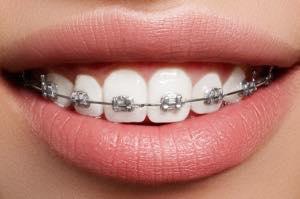 原因が「歯」の受け口は歯列矯正でも治療可能