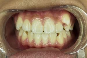 八重歯、乱杭歯の特徴とその原因