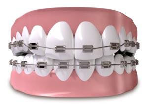 八重歯、乱杭歯の基本的な歯科矯正