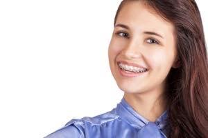 子供の八重歯は歯列矯正が向いている
