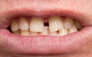 セラミッククラウンですきっ歯の矯正はできる?