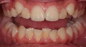 セラミッククラウンで八重歯の矯正はできる?