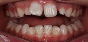セラミッククラウンで出っ歯の矯正はできる?