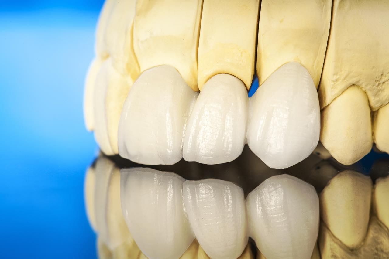 セラミック矯正と歯肉整形の併用でガミースマイルを改善