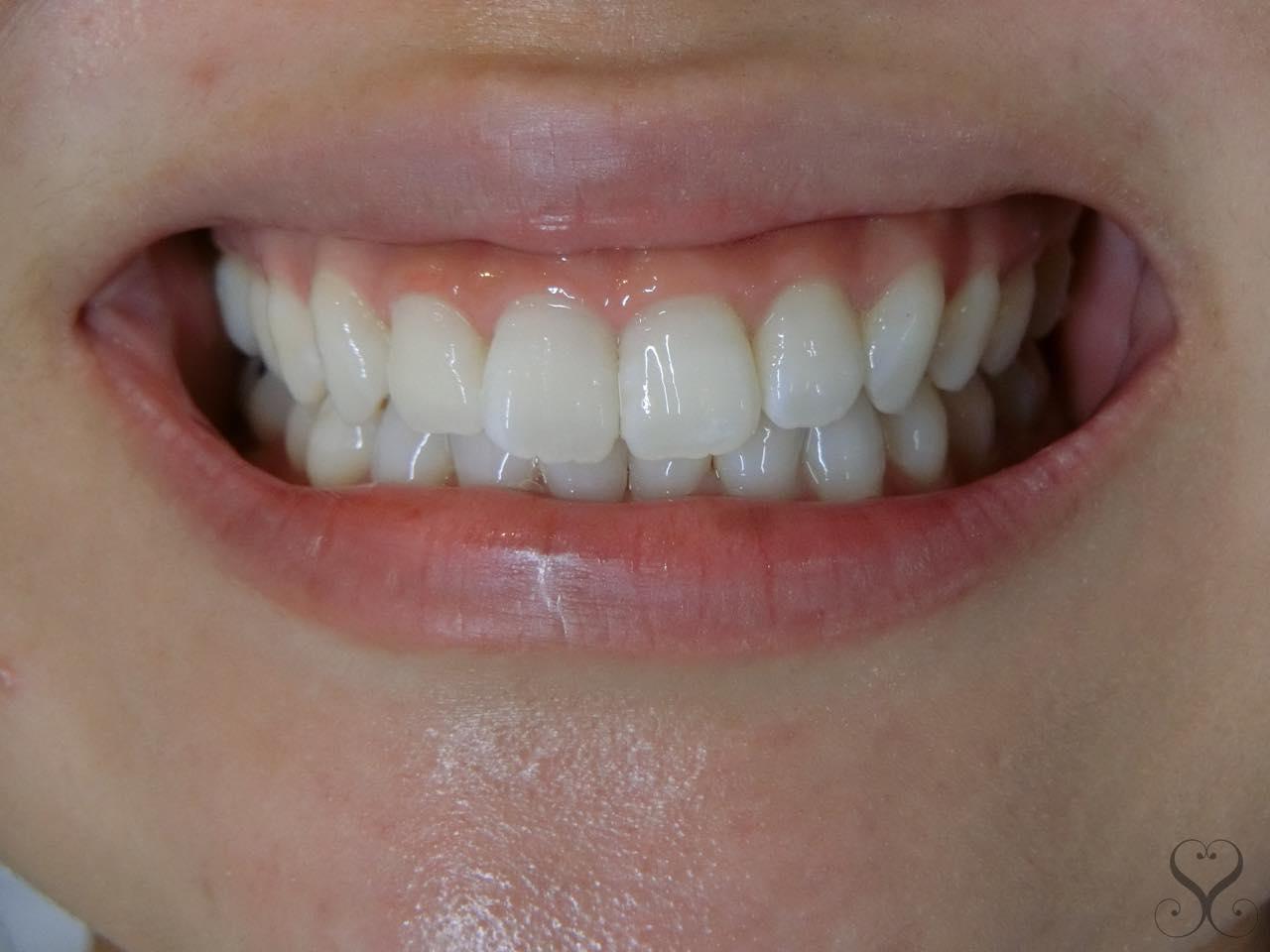 歯茎を切除する歯肉整形のデメリットは?後戻りで失敗しないための予備知識