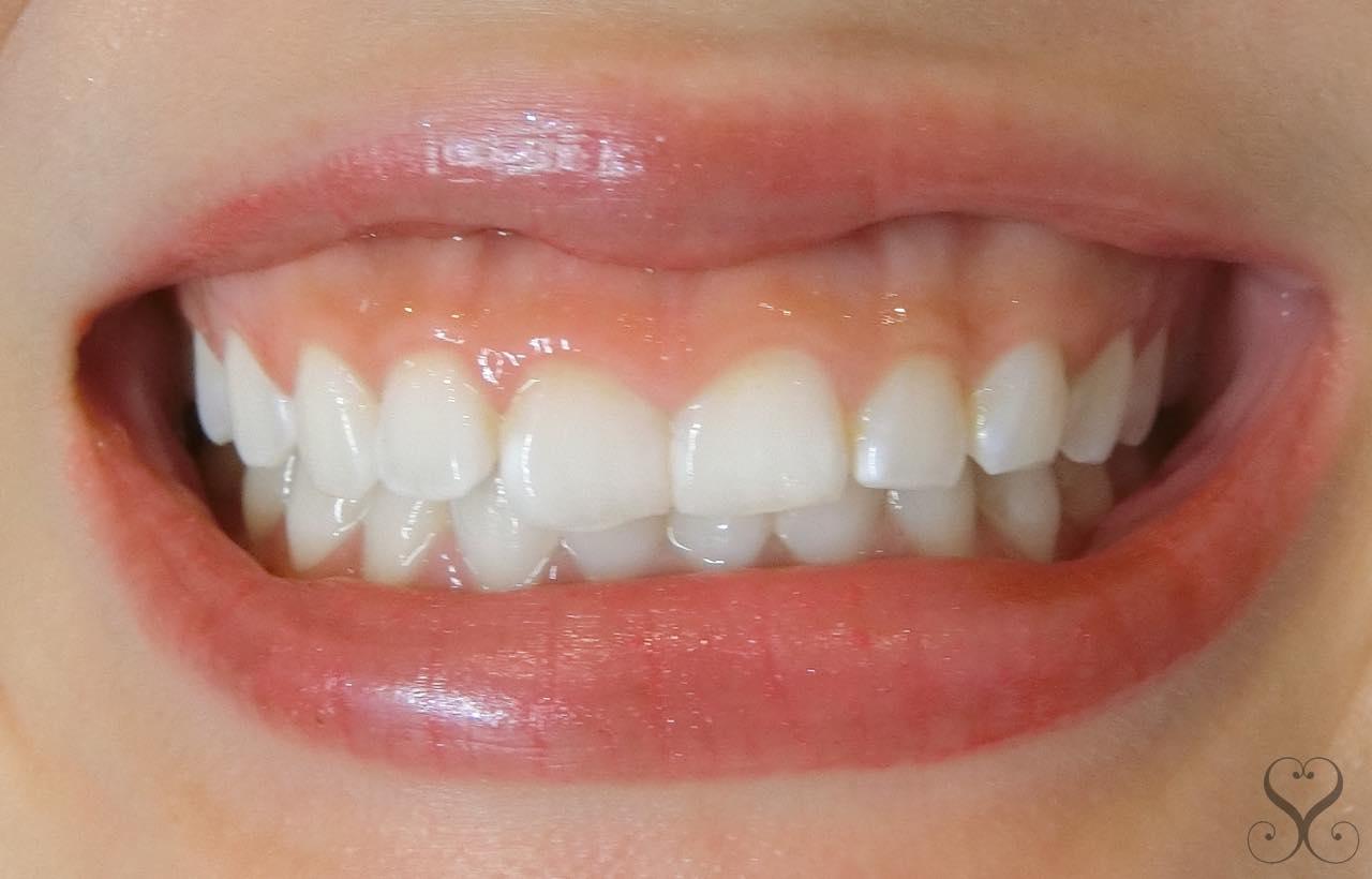 ガミースマイルを改善できる上唇挙筋切除術のメリットとデメリット