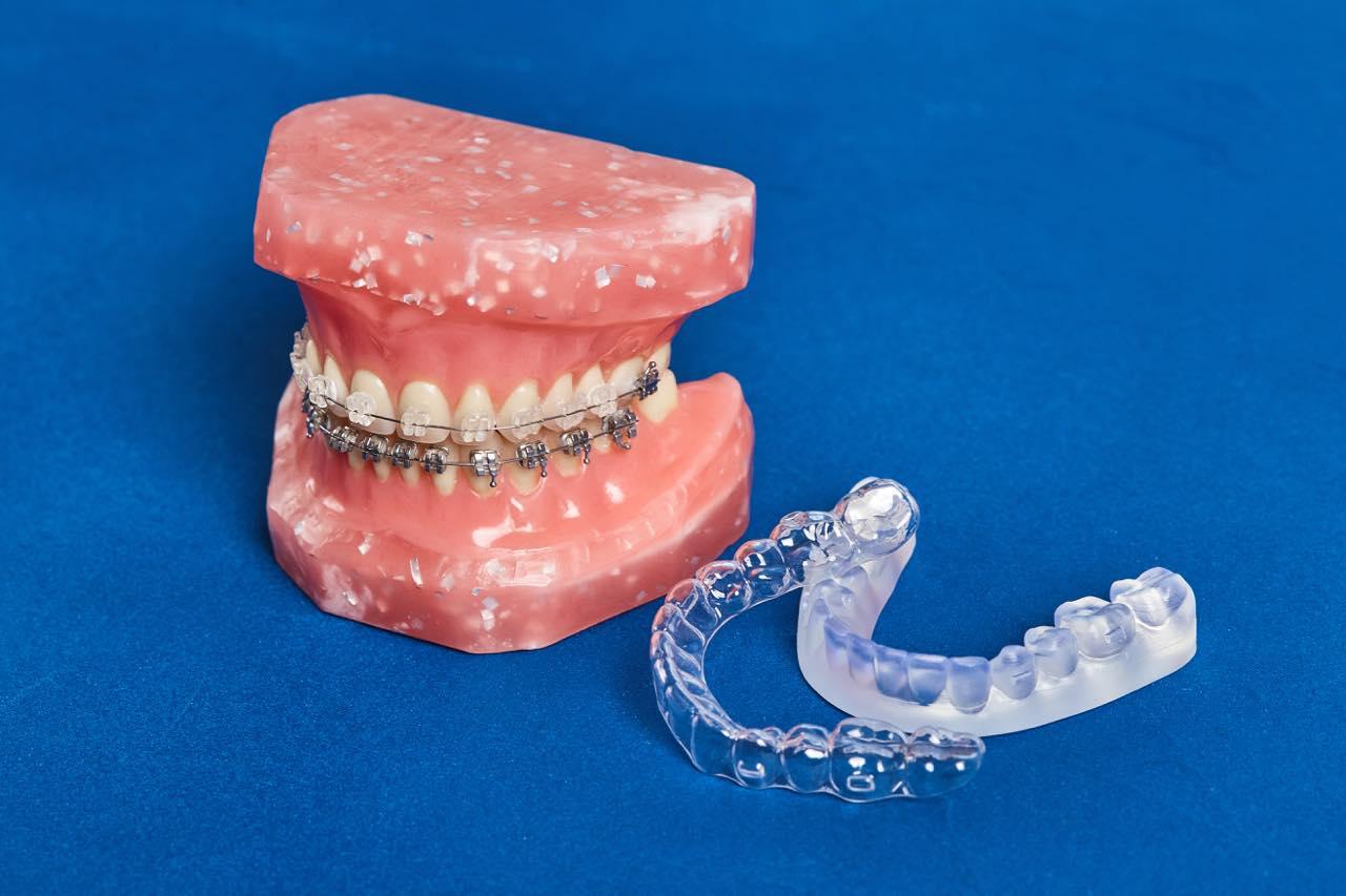 ガミースマイルの改善は歯列矯正でもできるの?