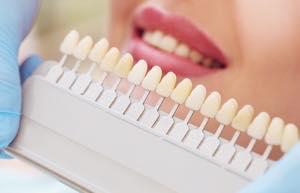歯の色のレベルは系統がある