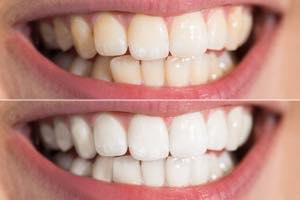オフィスホワイトニングとホームホワイトニングの歯の色のレベル