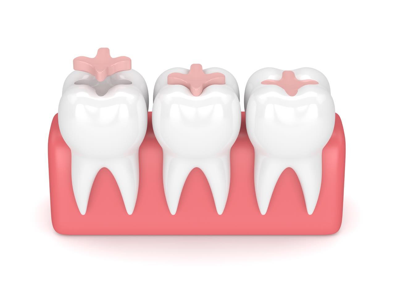 セラミックインレーを詰めた後に歯がしみる5つの原因と5つの対処法