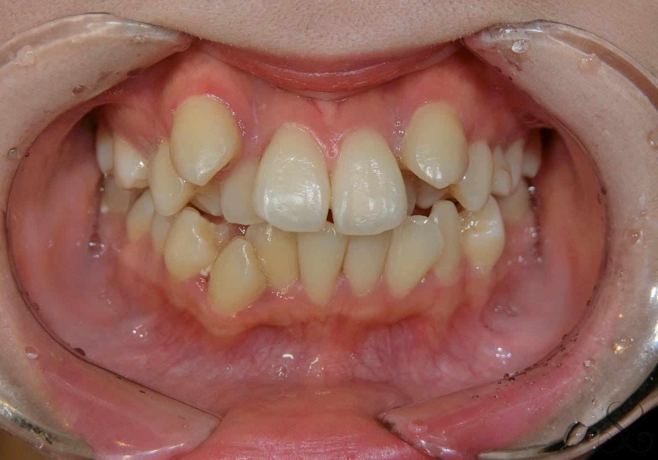 ガタガタの歯並び!叢生や乱杭歯って歯列矯正で治るの?